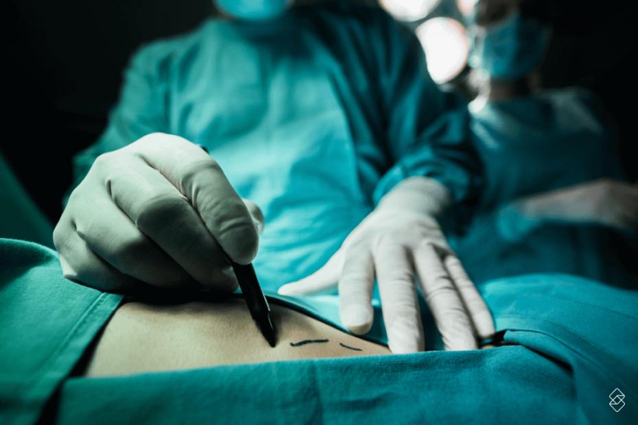 descubra aqui como fazer financiameto para cirurgia plástica